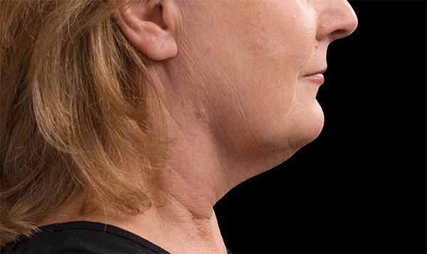 CoolSculpting female patient, after shot - face
