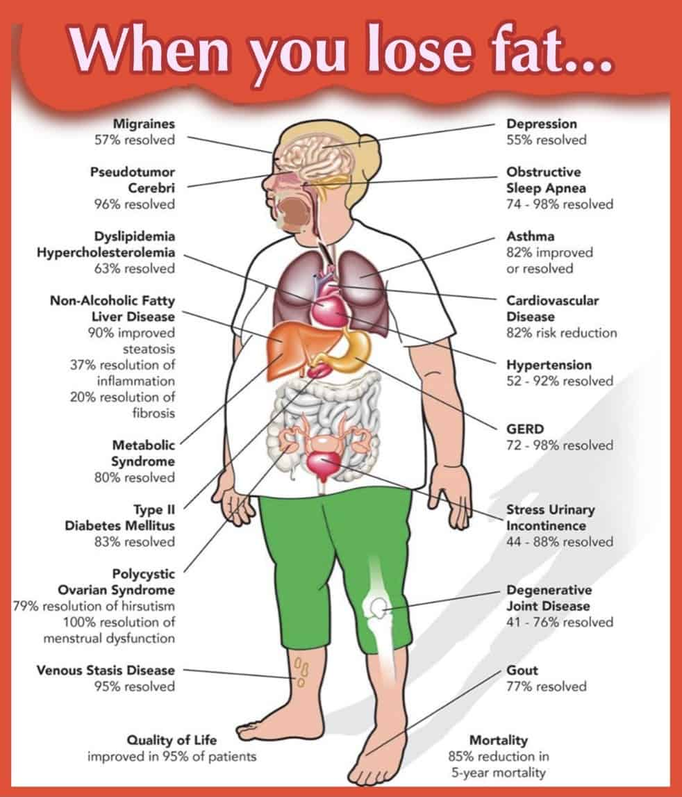 Infographic depicting health benefits of losing fat
