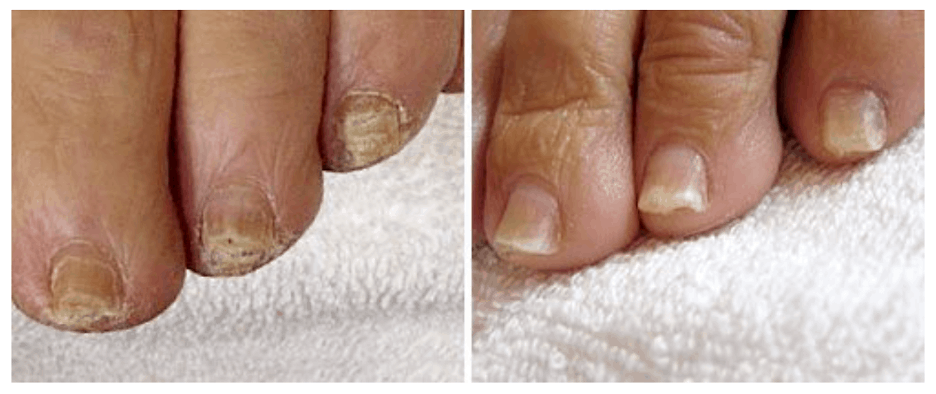 Before and after images of treatment for Onychomycosis (toe fungus)